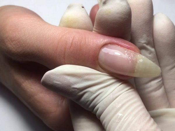 Касторовое масло от грибка ногтей на ногах