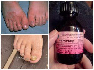 Фукорцин от грибка ногтей отзывы