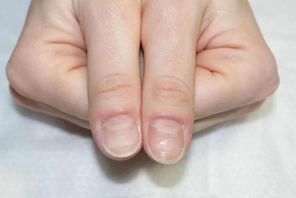 Дистрофия ногтя большого пальца ноги лечение причины фото