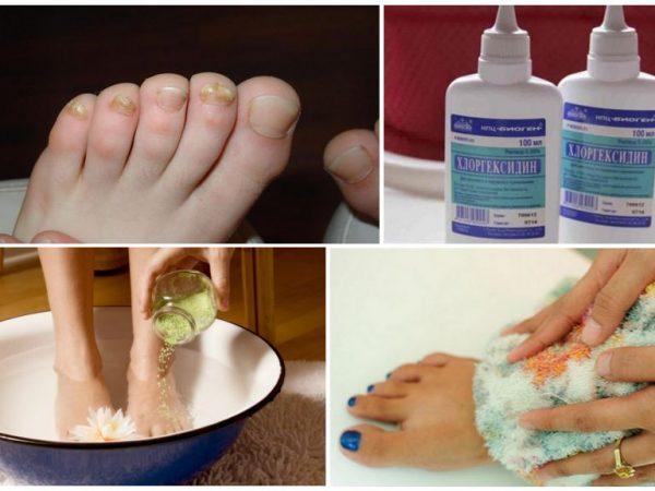 Хлоргексидин против грибка ногтей - О грибке ногтей